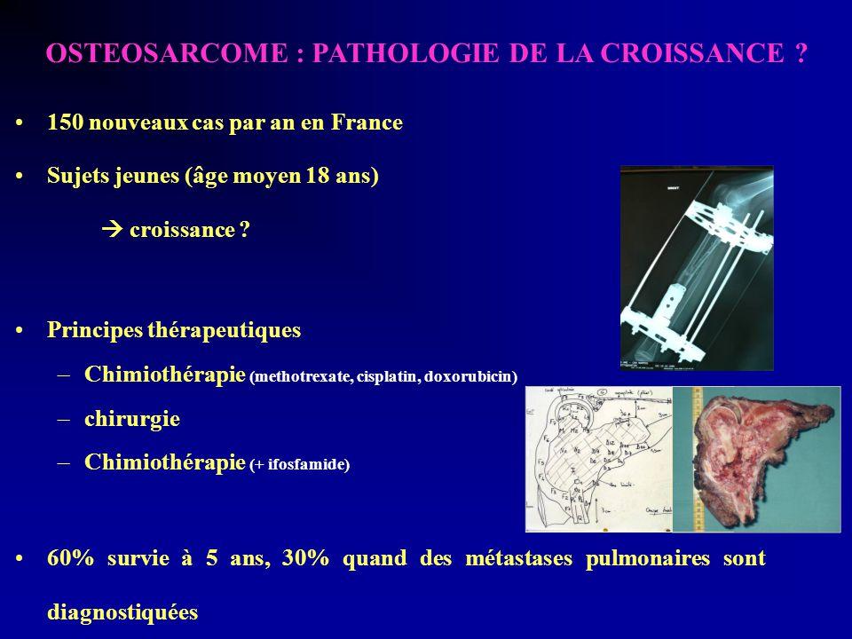 OSTEOSARCOME : PATHOLOGIE DE LA CROISSANCE