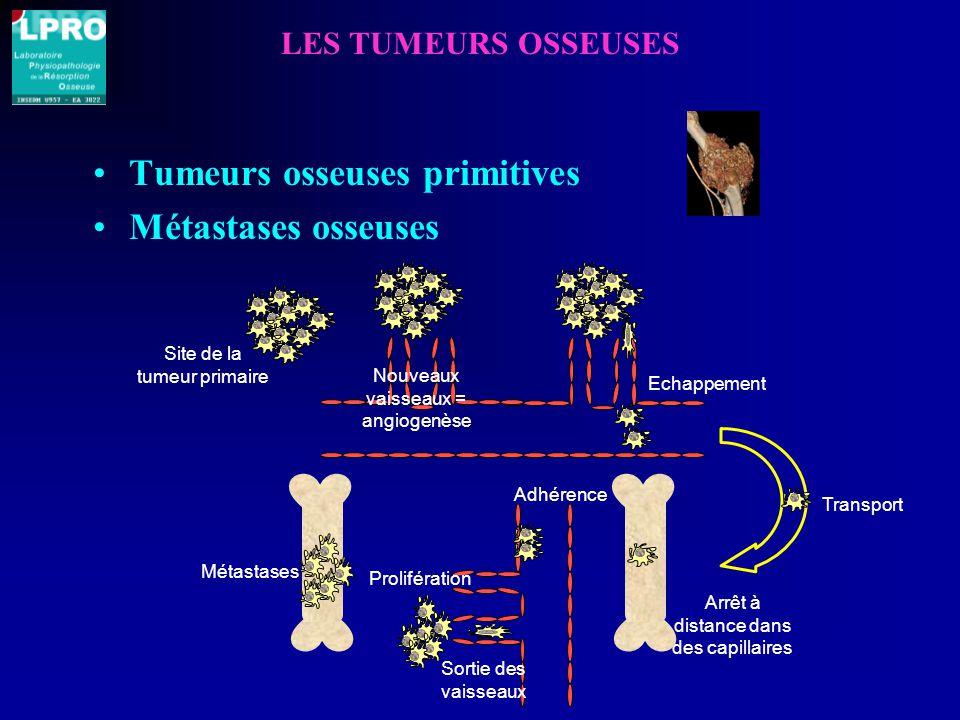 Tumeurs osseuses primitives Métastases osseuses