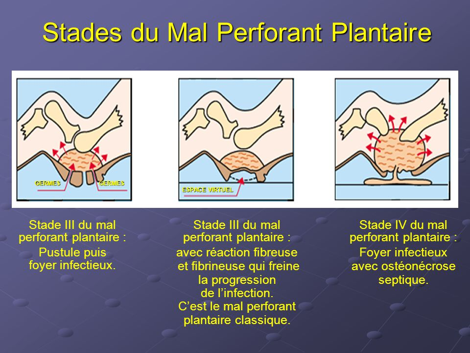 Stades du Mal Perforant Plantaire