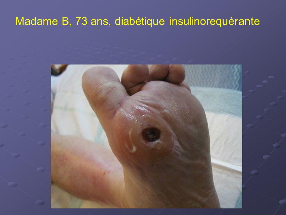 Madame B, 73 ans, diabétique insulinorequérante