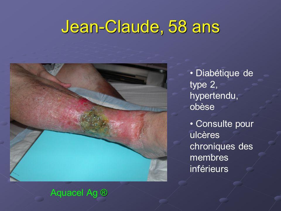 Jean-Claude, 58 ans Diabétique de type 2, hypertendu, obèse