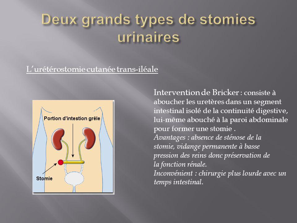 Deux grands types de stomies urinaires