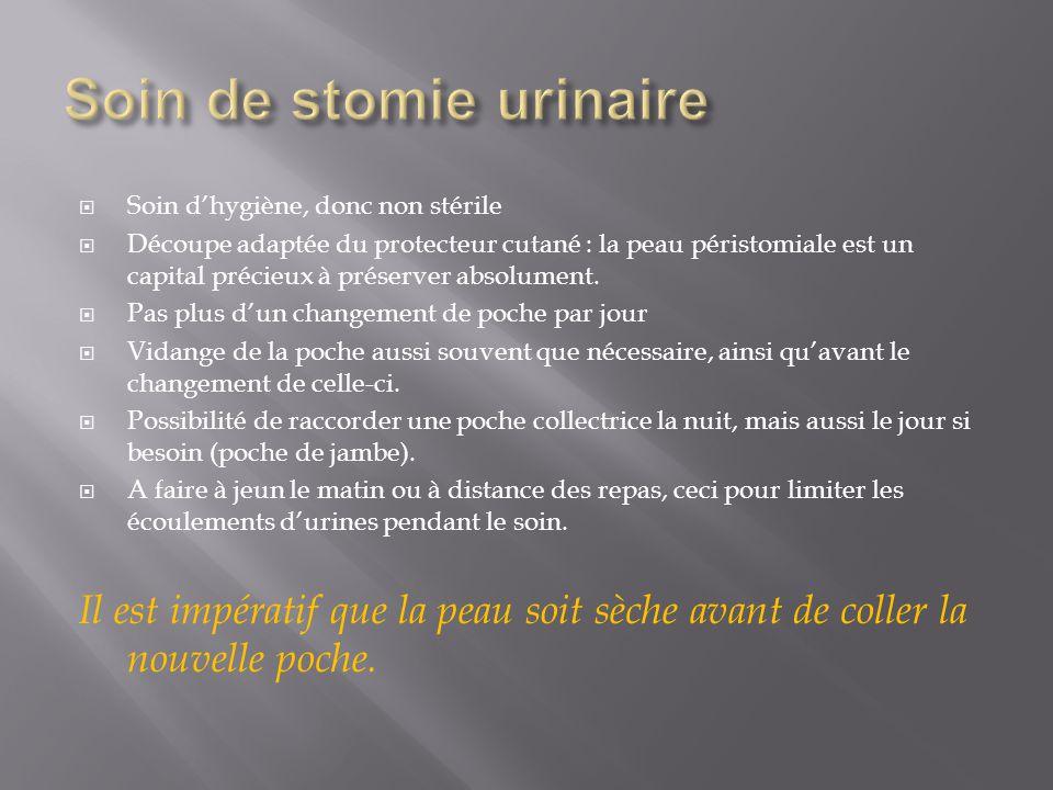 Soin de stomie urinaire