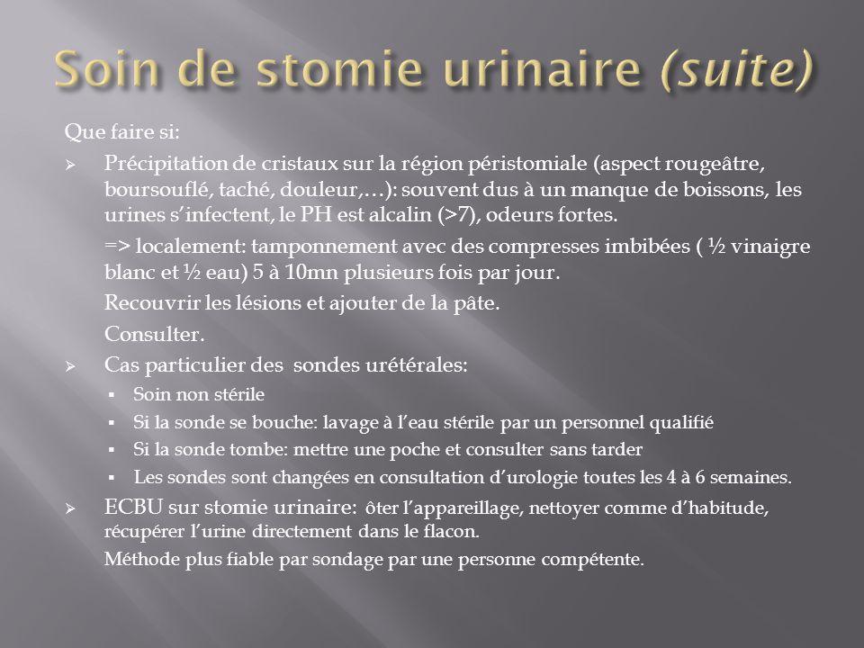 Soin de stomie urinaire (suite)