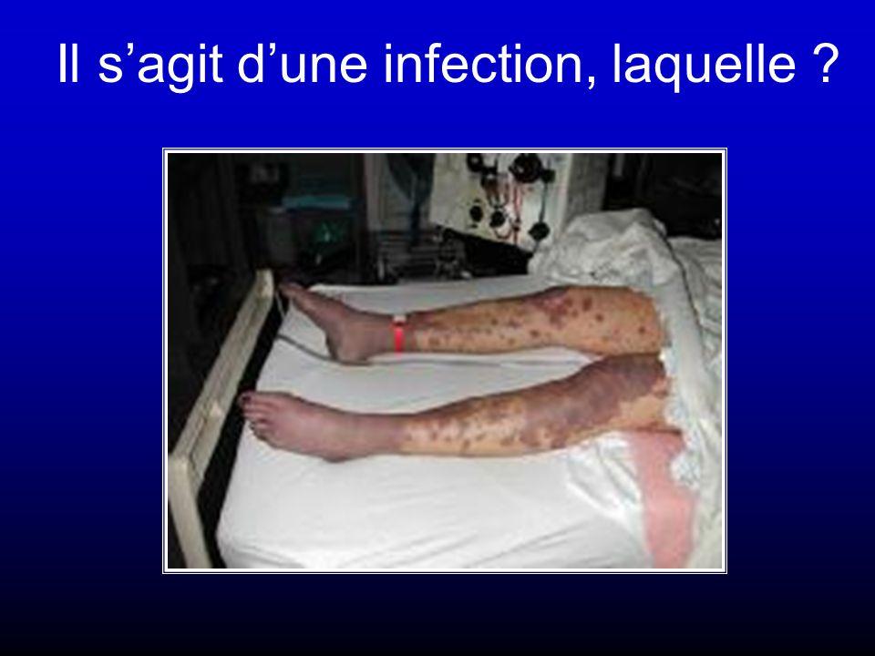 Il s'agit d'une infection, laquelle