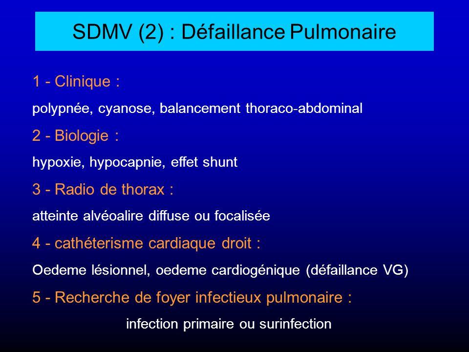 SDMV (2) : Défaillance Pulmonaire