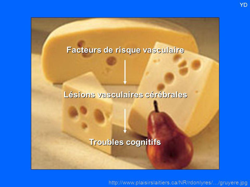Facteurs de risque vasculaire