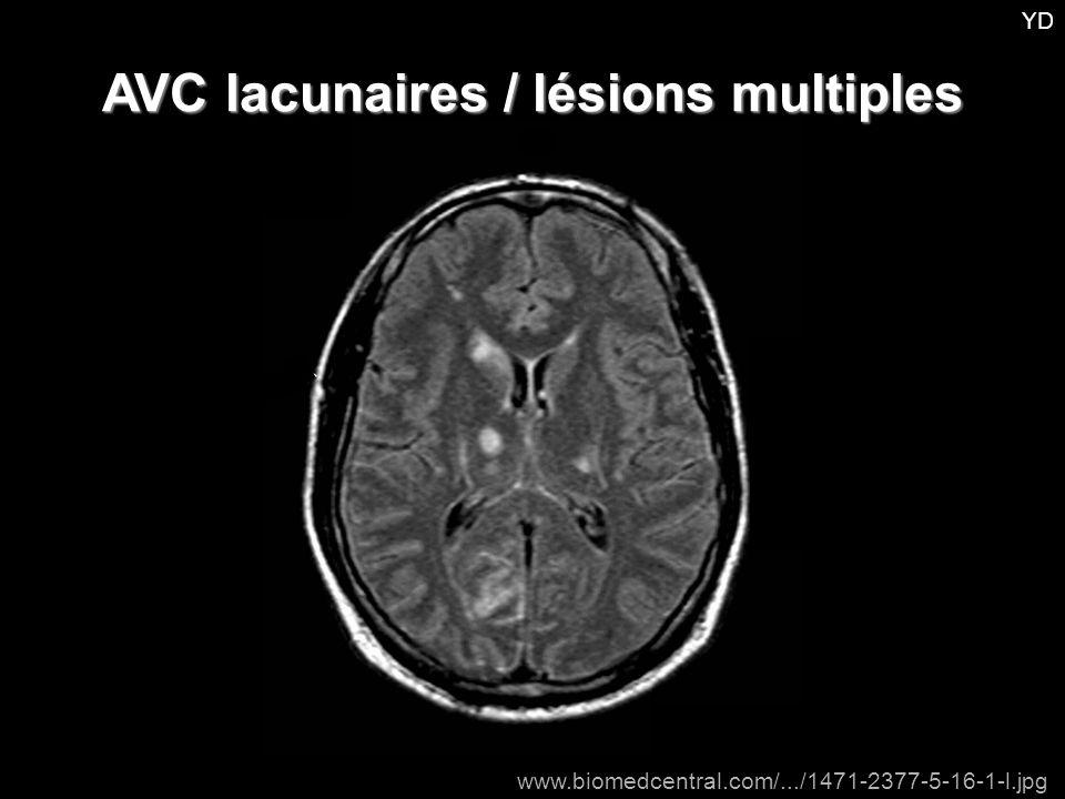 AVC lacunaires / lésions multiples
