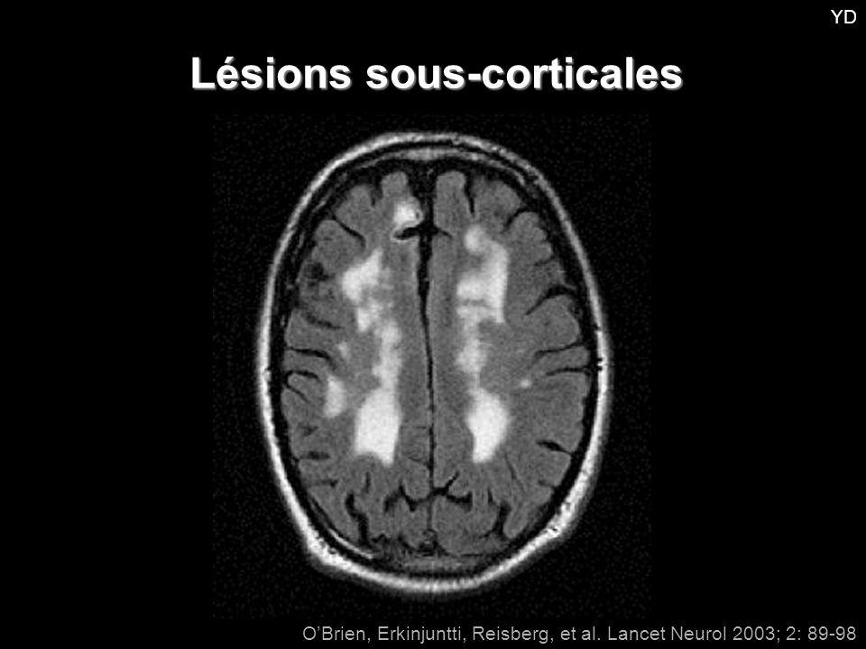 Lésions sous-corticales