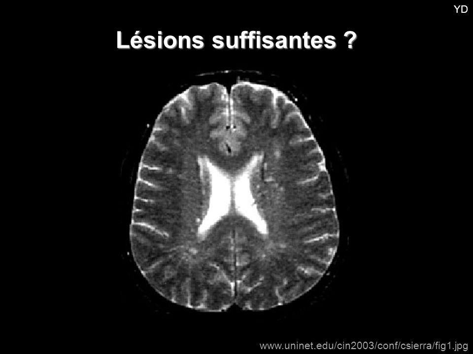 YD Lésions suffisantes www.uninet.edu/cin2003/conf/csierra/fig1.jpg