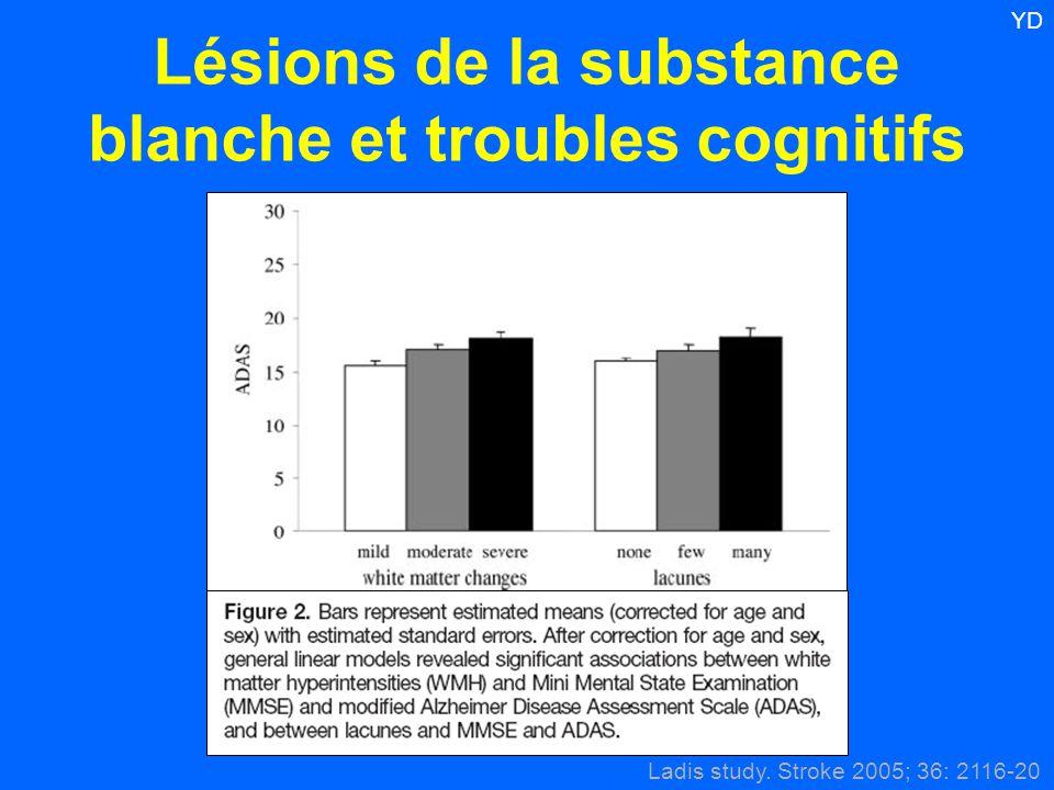 Lésions de la substance blanche et troubles cognitifs