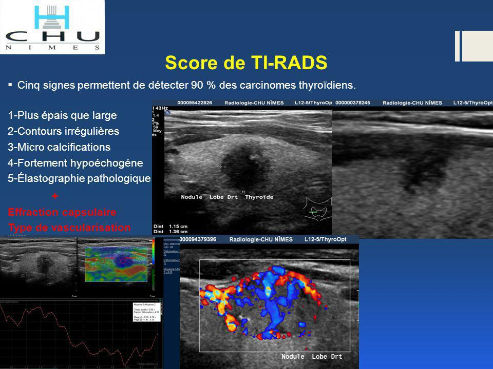 Score de TI-RADS Cinq signes permettent de détecter 90 % des carcinomes thyroïdiens. 1-Plus épais que large.