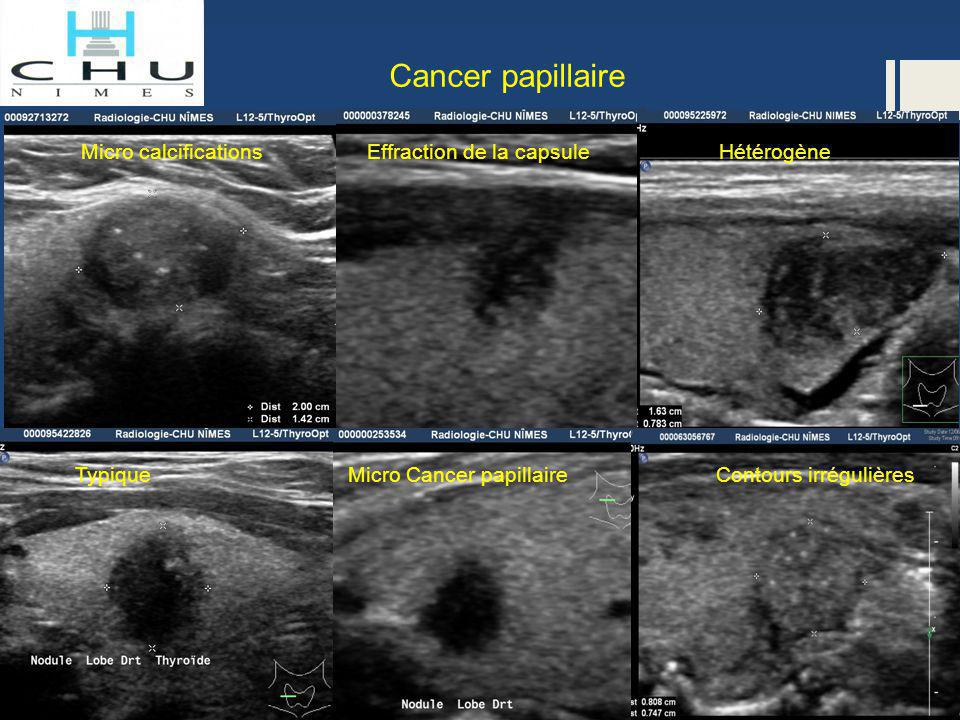 Cancer papillaire Micro calcifications Effraction de la capsule