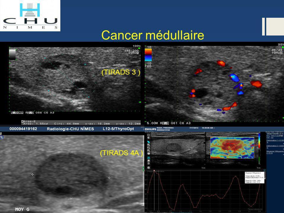 Cancer médullaire (TIRADS 3 ) (TIRADS 4A )