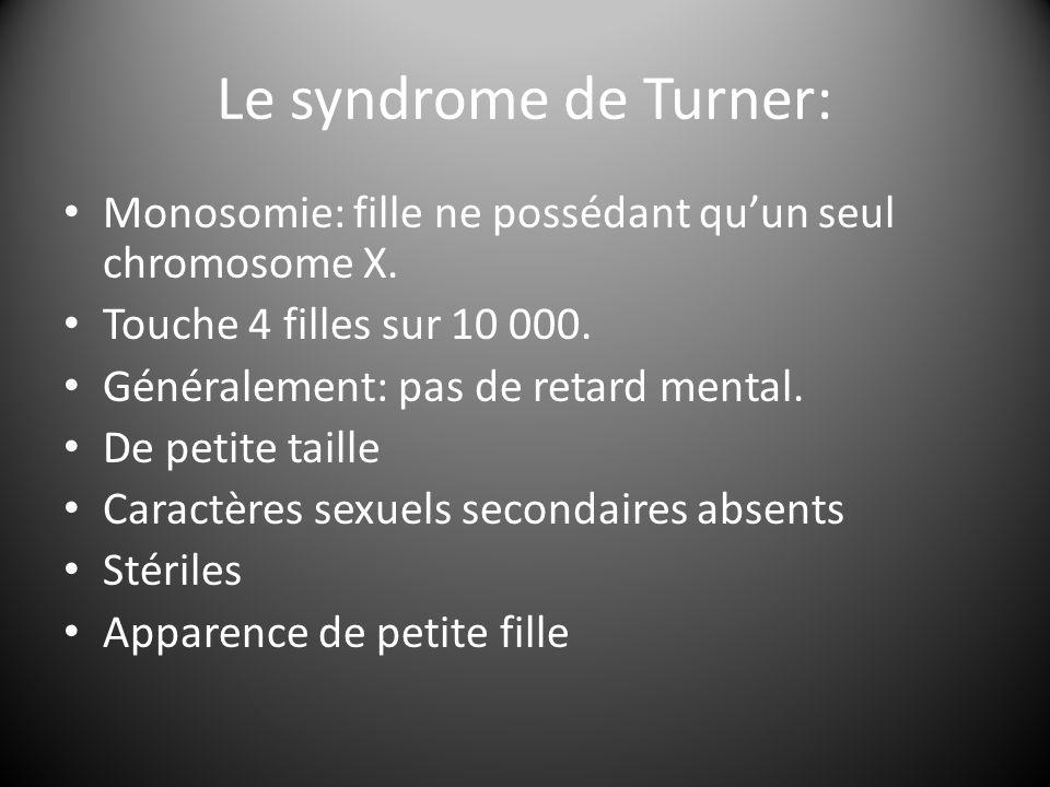 Le syndrome de Turner: Monosomie: fille ne possédant qu'un seul chromosome X. Touche 4 filles sur 10 000.