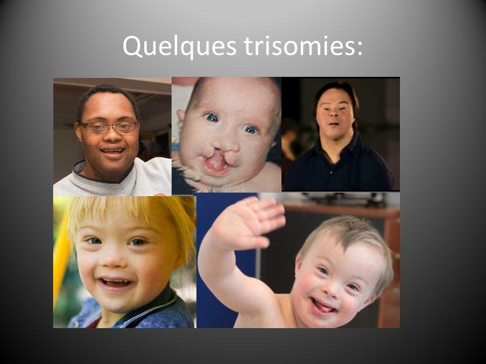 Quelques trisomies: