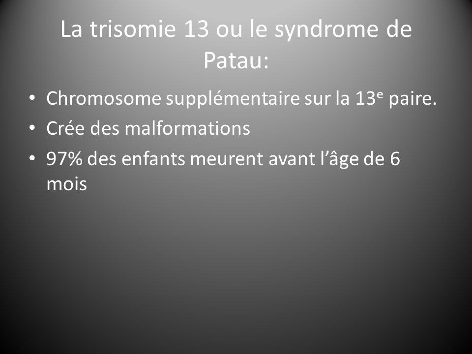 La trisomie 13 ou le syndrome de Patau: