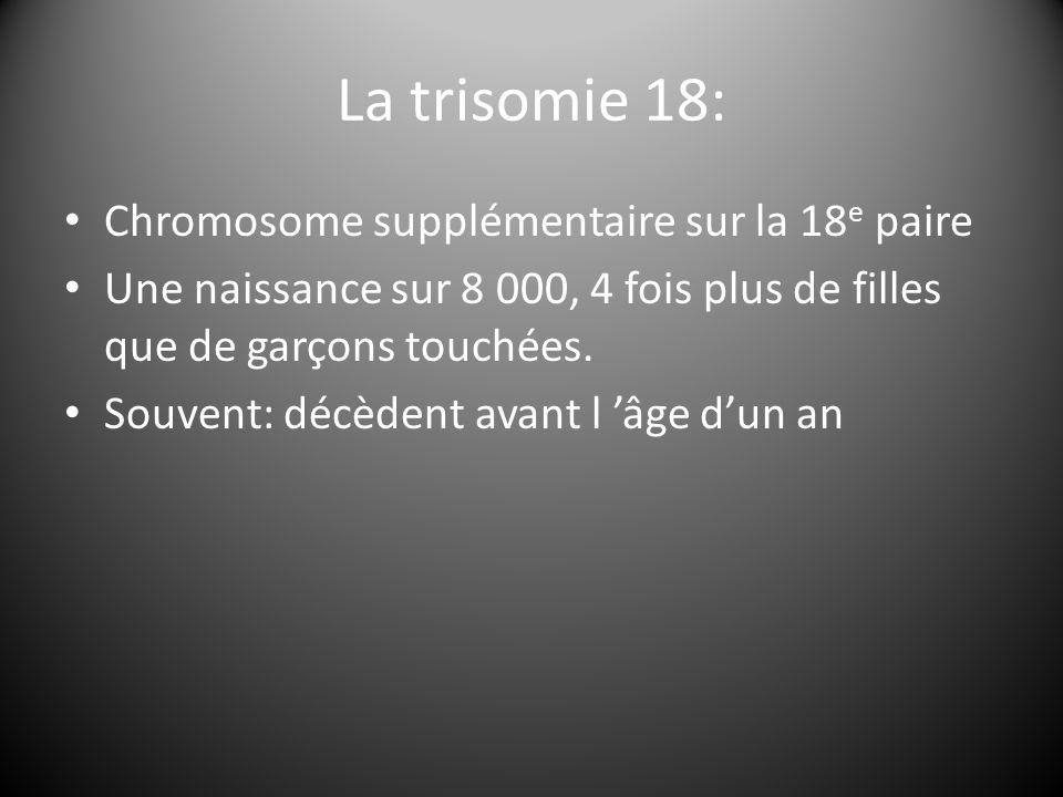 La trisomie 18: Chromosome supplémentaire sur la 18e paire