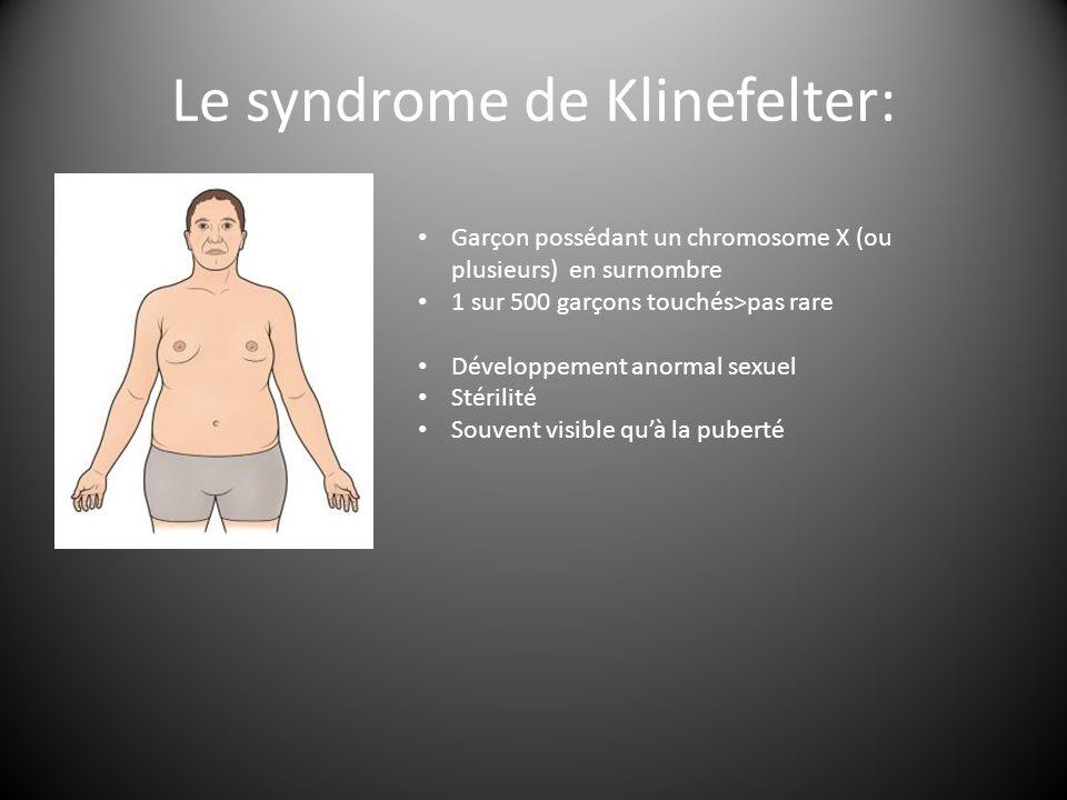 Le syndrome de Klinefelter: