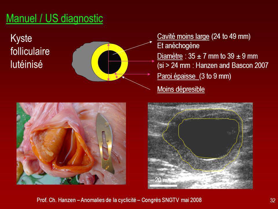 Manuel / US diagnostic Kyste folliculaire lutéinisé