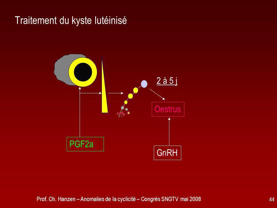 Traitement du kyste lutéinisé