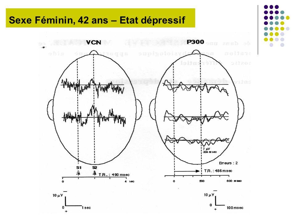 Sexe Féminin, 42 ans – Etat dépressif
