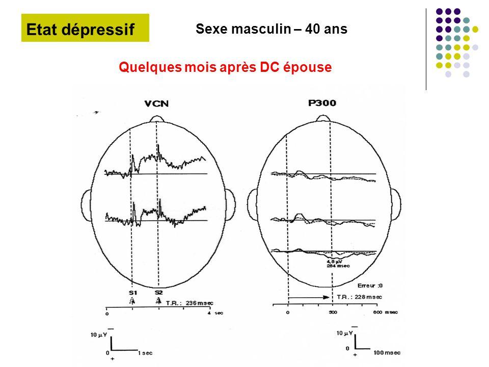 Etat dépressif Sexe masculin – 40 ans Quelques mois après DC épouse