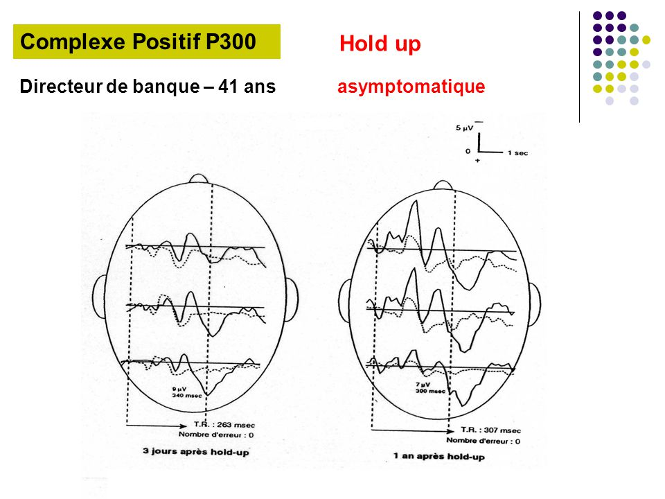 Complexe Positif P300 Hold up