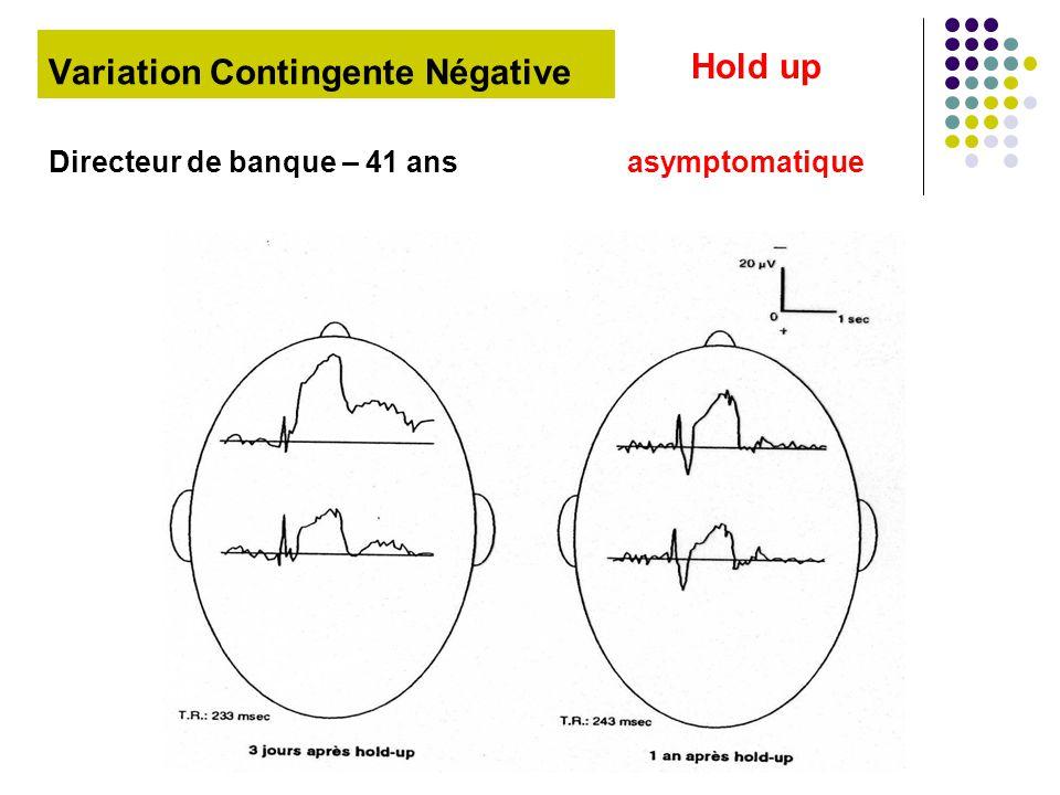 Variation Contingente Négative
