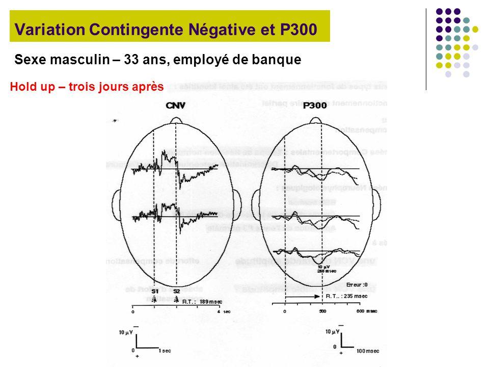 Variation Contingente Négative et P300