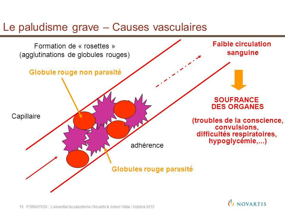 Le paludisme grave – Causes vasculaires