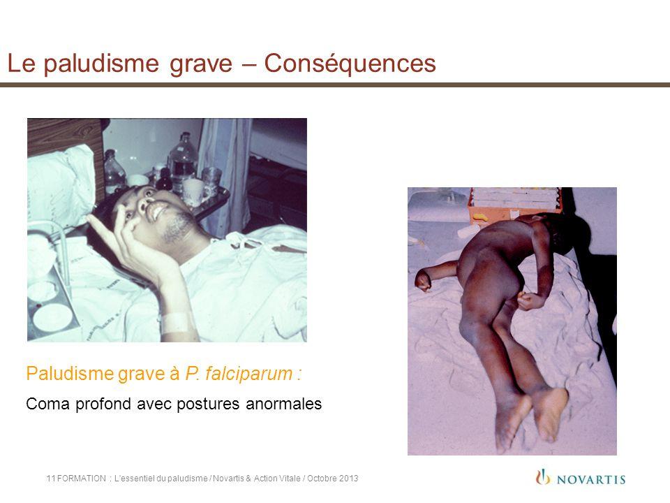 Le paludisme grave – Conséquences