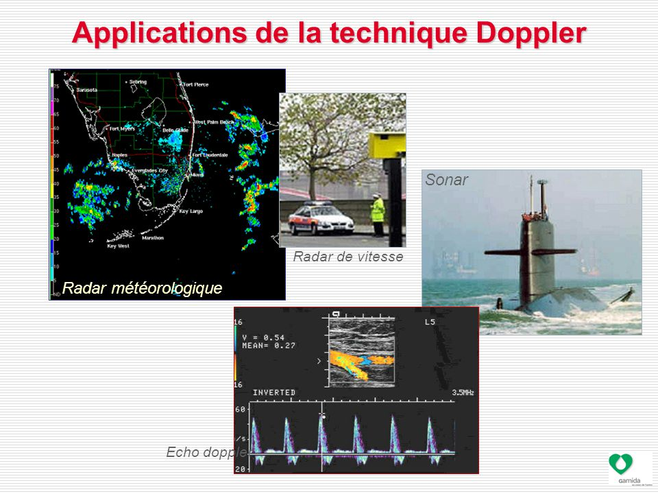 Applications de la technique Doppler
