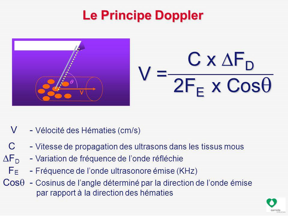 C x DFD V = V = 2FE x Cosq Le Principe Doppler
