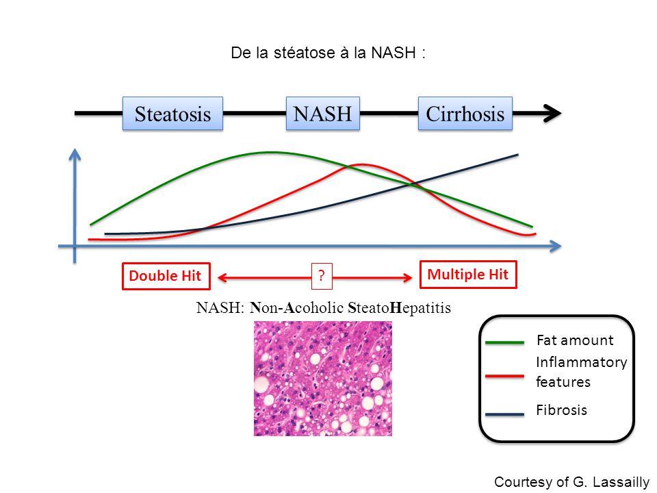 De la stéatose à la NASH :