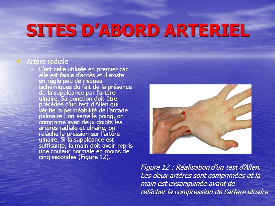 SITES D'ABORD ARTERIEL