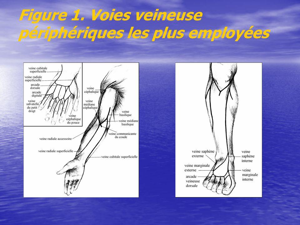 Figure 1. Voies veineuse périphériques les plus employées