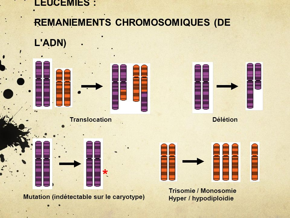 ORIGINE GENETIQUE ACQUISE DES LEUCEMIES : REMANIEMENTS CHROMOSOMIQUES (DE L ADN)