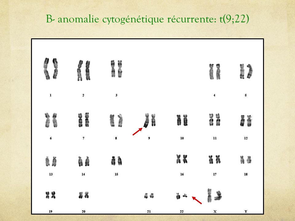 B- anomalie cytogénétique récurrente: t(9;22)