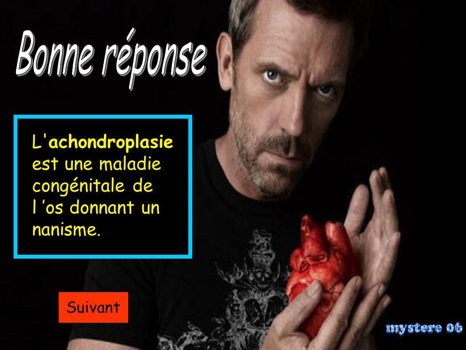 Bonne réponse L achondroplasie est une maladie congénitale de l 'os donnant un nanisme.