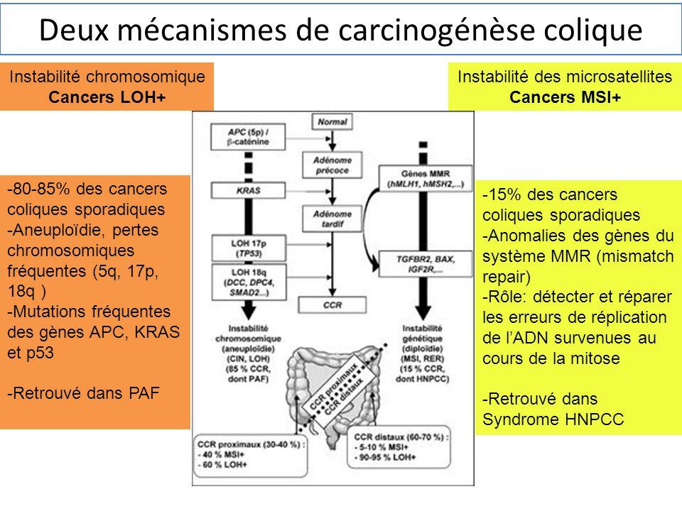Deux mécanismes de carcinogénèse colique