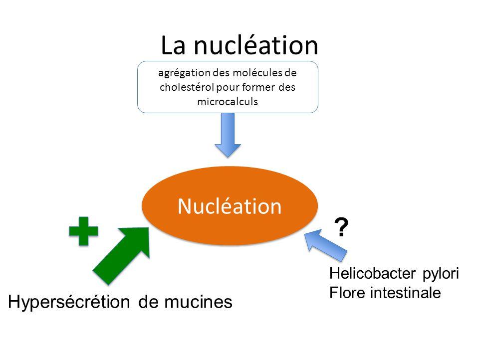 agrégation des molécules de cholestérol pour former des microcalculs