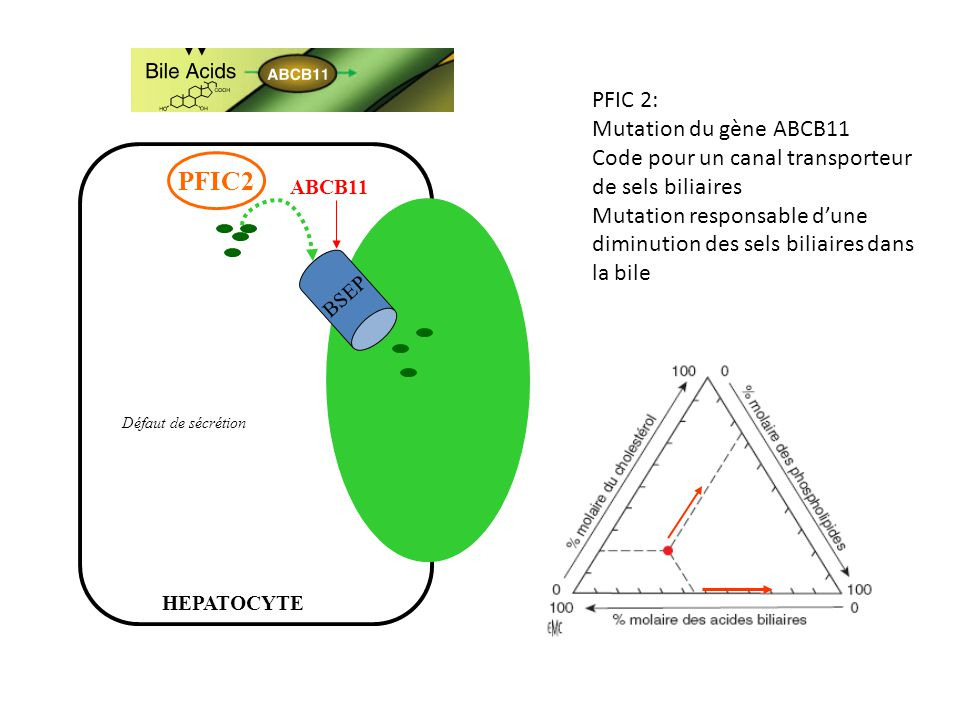 PFIC2 PFIC 2: Mutation du gène ABCB11