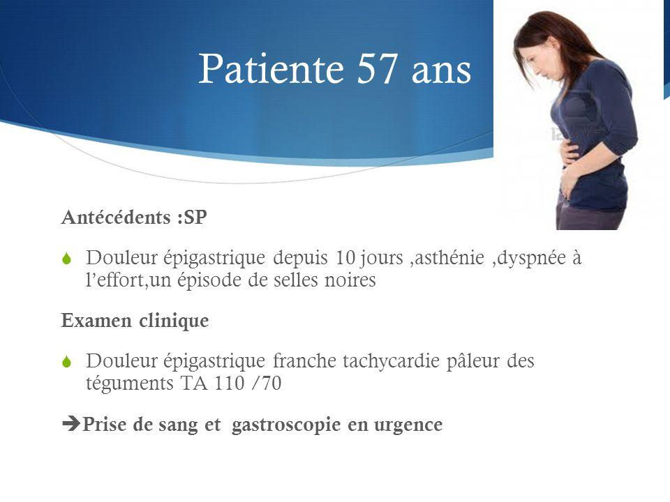 Patiente 57 ans Antécédents :SP