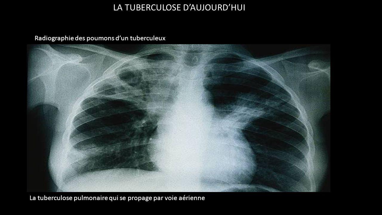 LA TUBERCULOSE D'AUJOURD'HUI