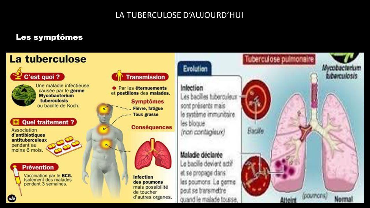 la tuberculose d u2019aujourd u2019hui