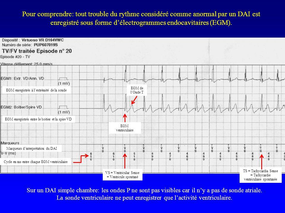 Pour comprendre: tout trouble du rythme considéré comme anormal par un DAI est enregistré sous forme d'électrogrammes endocavitaires (EGM).