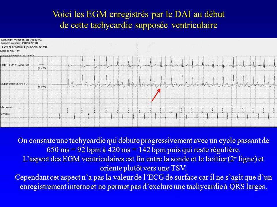 Voici les EGM enregistrés par le DAI au début de cette tachycardie supposée ventriculaire