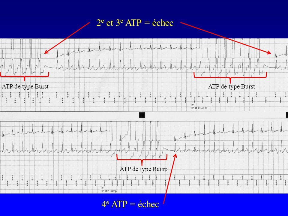 2e et 3e ATP = échec 4e ATP = échec ATP de type Burst