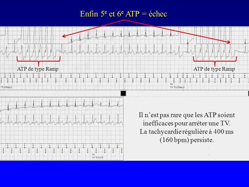 Enfin 5e et 6e ATP = échec ATP de type Ramp. ATP de type Ramp. Il n'est pas rare que les ATP soient inefficaces pour arrêter une TV.